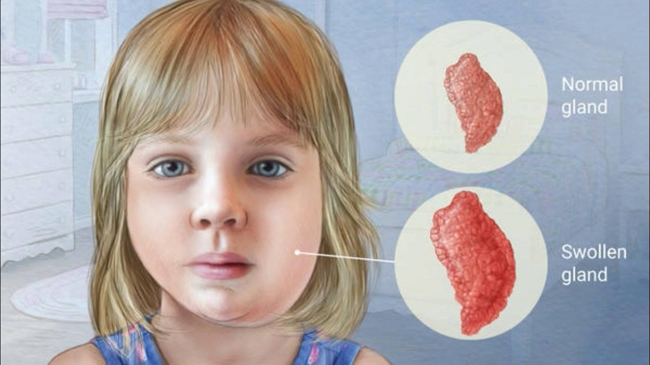 Mumps (Mumps)